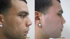 Pred a po ošetrení...