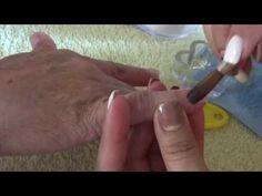 aplicación de acrílico en uñas mordida (onicofagía)