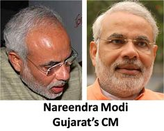 Shri Narendra Modi Hair Transplant - Do you think that our dashing PM has done hair transplant surgery? Well it looks like that. Check his before and after photos.