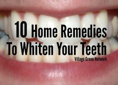 10 Home Remedies To Whiten Your Teeth / http://villagegreennetwork.com/10-home-remedies-whiten-teeth/