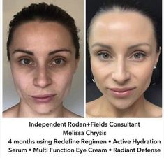 Rodan + Fields gives you the best skin of your life and the confidence that comes with it. Created by Stanford-trained Dermatologists, we understand skin. Our easy-to-use Regimens take the guesswork out of skincare so you can see transformative results. Redefine Regimen, Skin Care Regimen, Love Your Skin, Good Skin, Executive Consultant, Rodan And Fields Consultant, Aging Backwards, Glowing Skin, Healthy Skin