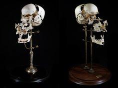 Череп Бошене, или взорванный череп - разборный череп, кости которого отделены друг от друга. Для разъединения костей черепа до настоящего времени применяется способ, разработанный французским анатомом Бошене (Edme François Chauvot de Beauchene, 1780-1830). При этом полость черепа заполняют сухим горохом и закрывают большое затылочное отверстие щепкой, чтобы горох не высыпался. После этого череп погружают в воду, где горох разбухает и разрывает черепные швы.