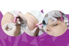 Dermopuntura: Nas mãos dos melhores profissionais!