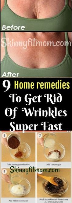 9 Most Effective Remedies To Get Rid Of Wrinkles, Fine Lines, Crow's Feet, Deep Furrows, Saggy Face FAST (Tested & Proven)