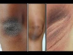 People around the world are ashamed of wearing sleeveless tops due to the dark skin patches on their underarms and neck. This condition is called acanthosis nigricans, and is a skin pigmentation problem that. Best Beauty Tips, Beauty Hacks, Dark Patches On Skin, Acanthosis Nigricans, Dark Spots On Legs, Skin Spots, Tips Belleza, Healthy Skin, Healthy Life