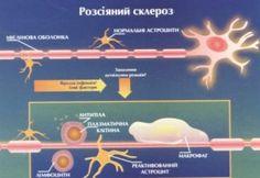 РОЗСІЯНИЙ СКЛЕРОЗ (до Міжнародного дня розсіяного склерозу)