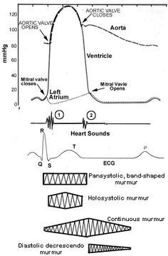 Cardiac Murmurs | Murmurs (chart) | Cardiac and Vascular ...