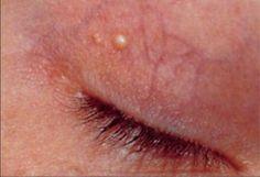 Ξανθέλασμα: τα λευκά σημάδια γύρω από τα μάτια - Με Υγεία Eyes, Stains
