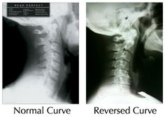 This is what a reversed cervical curve looks like. A recent study found it is 18 times more common in people who get headache or neck pain. If this is you, put down the aspirin, pick up the phone and book an initial consult with X-ray to discuss correcting your spine today. (02) 60563033