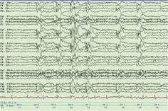 Reading Epilepsy ovvero l'Epilessia da Lettura Una bizzarra forma di epilessia legata alla semplice lettura di un qualsiasi testo (anche musical epilessia lettura libri malattia
