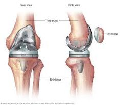 23 Best Knee Replacement images in 2019 | Hip replacement