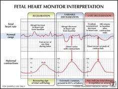 Fetal Heart Monitor Interpretation- OB, not likely I'll need this, but it was something I had a hard time with in nsg school Newborn Nursing, Child Nursing, Ob Nursing, Nursing School Tips, Nursing Tips, Nursing Notes, Nursing Students, Maternity Nursing, Nursing Schools