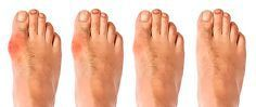 Gout is an incredibly painful and common condition that affects the joints and leads to searing pain and inflammation. Here are 4 natural treatments for Gout Gout Remedies, Toenail Fungus Remedies, Sleep Remedies, Health Remedies, Natural Remedies, Natural Treatments, Spa Treatments, Get Rid Of Bunions, Migraine