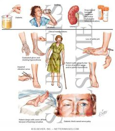 neuropathy treatment for feet