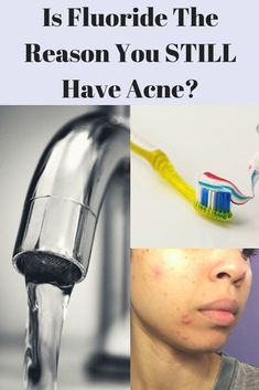 If you're still suffering from acne and don't know why your skin hasn't cleared after switching up your diet and lifestyle, then this video is for you. Chin Acne Causes, Best Skin Care Routine, Hormonal Acne, Jawline, Diy Skin Care, Still Have, Good Skin, Natural Skin Care, Anti Aging