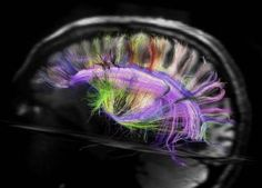 """Connections of axons (or nerve fibers) between the sections of the brain look more like a """"chess board"""" than a """"ball"""" or a """"plate of spaghetti"""", claims a recent study, which did a detailed imaging of the brain wiring.    Using the latest techniques of recording the flow of water molecules in the brain, scientists revealed a simple and almost geometric architecture of the nerve fiber net, which has been nominated """"the most complex thing in the known universe."""""""