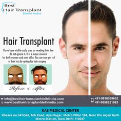 Hair Transplant Cost, Hair Transplant Surgery, Eyelashes, Eyebrows, Receding Hair Styles, Moustaches, Plastic Surgery, Hair Loss, Clinic