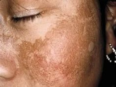 Melasma is a form of hyperpigmentation in women of color. You know it as the pregnancy mask. But it's not always pregnancy that brings it into our view. Crema Facial Natural, American Skin, Black Skin Care, Spots On Face, Sensitive Skin Care, Hair Transplant, Tips Belleza, Hair Care Tips