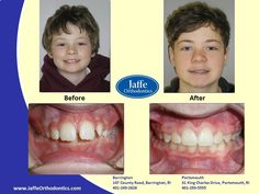 Nick Orthodontics, Portsmouth, King Charles, Photos, Pictures, Cake Smash Pictures