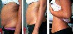 Eliminate Fat With This 10 Minute Trick - « Je n'ai JAMAIS Imaginé que 2 cuillères à soupe de CECI me fera perdre autant de graisses en 15 jours ! Fat Loss Diet, Weight Loss Diet Plan, Weight Loss Program, Best Weight Loss, Weight Loss Tips, Losing Weight, Vicks Vaporub, Reduce Belly Fat, Fat Belly
