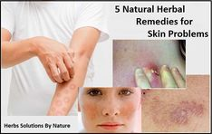 5 Natural Herbal Remedies for Skin Problems