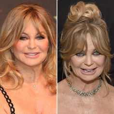 Goldie Hawn Plastic Surgery Getty Images – – Care – Skin care , beauty ideas and skin care tips Bill Hudson, Oliver Hudson, Kate Hudson, Bad Celebrity Plastic Surgery, Bad Plastic Surgeries, Plastic Surgery Gone Wrong, Goldie Hawn, Celebrities Then And Now, Best Eyebrow Products