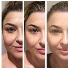 What a beautiful result for Luminesce, achieved over 90 days using the Rejuvenation Serum and Daily Moisturizing complex. Luminesce, the flagship product by Jeunesse is the only one in the world to contain adult stem cell messengers which has been clinically proven to rejuvenate skin at the molecular level. Ideal also for burns, scarring, stretch marks, and acne. 7 day trial packs available at www.beautyukdistribution.co.uk
