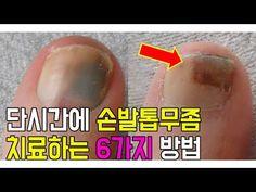6 문제성발톱시술오른발비디오 - YouTube
