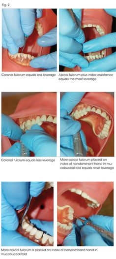 How not to overwork your hands: Use a little leverage during periodontal instrumentation Dental Hygiene Student, Dental Humor, Dental Assistant, Dental Hygienist, Dental World, Dental Life, Dental Health, Teeth Health, Oral Health