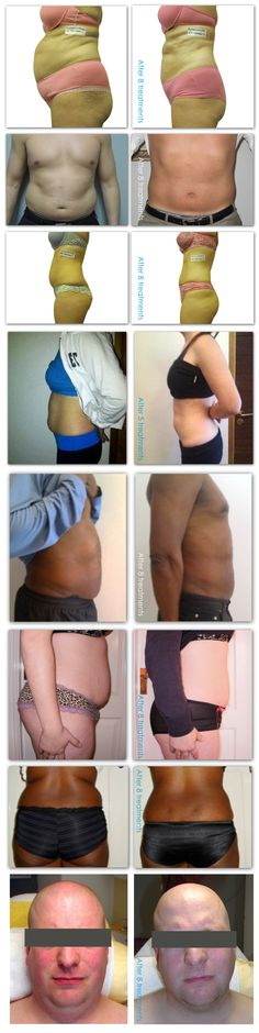 i-lipo before and after pics....what a difference!  Ring up for a trial session of i-lipo and see the inches drop off 01325 461230