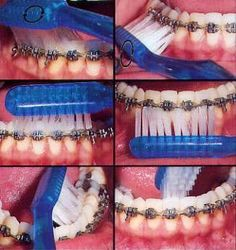How To Clean Orthodontic Braces at Home!  Easy Steps. Pittsford Pediatric Dentistry | #Pittsford | #NY | www.pittsfordpediatricdentistry.com