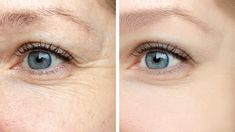Woman face, eye wrinkles before and after treatment - the result of rejuvenating cosmetological procedures of biorevitalization, botox and pigment spots removal - Buy this stock photo and explore similar images at Adobe Stock Under Eye Wrinkles, Prevent Wrinkles, Ageless Serum, Moslem, Peau D'orange, Cosmetic Clinic, Rides Front, Les Rides, Crows Feet