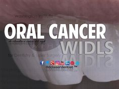 #Oral #Cancer Who should get #screened? What are the #risk #factors? 6 Month Checkup if not more #frequent #based on your systemic #risk!