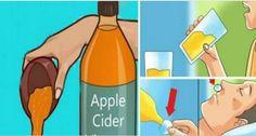 Bevi in questo modo l'aceto di sidro di mele prima di andare a letto: la tua vita cambierà in una sola notte. Vediamone insieme le ?