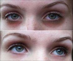 Muitas pessoas sofrem diariamente com as olheiras, talvez por dormir mal uma ou… #HowToGetRidOfEyeBags