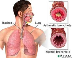 Asthma Attack In Child