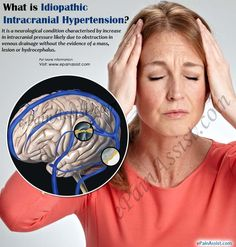 Tinnitus can wreak havoc on one's life. Though it is not an actual condition itself, it is a sign that another problem exists. If you are bothered by symptoms and are in desperate need of a tinnitus treatment, read on. Sound therapy is perhaps the most. Intracranial Pressure, Intracranial Hypertension, Chronic Illness, Chronic Pain, Pseudotumor Cerebri, Jaw Clenching, Tinnitus Symptoms, Chiari Malformation, Behavioral Therapy