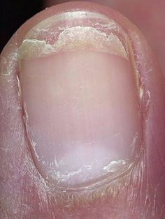 Toenail Problems, Toe Nails, Most Beautiful Pictures, Natural Remedies, The Cure, Wedding Photos, Health Fitness, Hair Beauty, Perfume