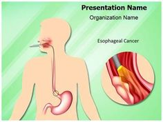 Esophageal Cancer Powerpoint Template is one of the best PowerPoint templates by EditableTemplates.com. #EditableTemplates #PowerPoint #Digestion #Dysphagia #Gastroesophageal #Tumor #Endoscopy #Esophageal #Cancer #Esophagus