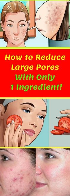 How to Reduce Large Pores With Only 1 Ingredient!