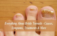 Everything About Brittle Toenails