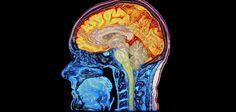 Study finds brain marker of poor memory in schizophrenia patients