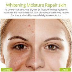 VIBRANT GLAMOUR Vitamin C Whitening Face Serum Hyaluronic Acid Cream R – mompreg Skin Firming, Skin Brightening, Vitamin A Acne, Hyaluronic Acid Cream, Acne Serum, Whitening Face, Uneven Skin Tone, Dark Spots, Acne Treatment