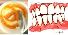 This Homemade Toothpaste Reverses Gum Disease and Whitens Teeth!