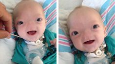 Baby Born Without A Nose Is So Cute, He's Melting People's Heart's All Over The World! -