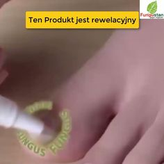 Varicose Vein Remedy, Varicose Veins, Natural Health Tips, Natural Cures, Baking Videos, Chicken Recipes Video, Healthy Weight Gain, Hooded Eye Makeup, Body Motivation