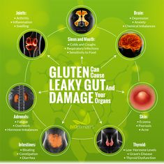 Yes, Help me digest gluten, reduce bloating and inflammation and other issues with Gluten Guardian! Chemical Imbalance, Hormone Imbalance, Health Resources, Health Articles, Brain Connections, Graves Disease, Digestion Process, Reduce Bloating, Leaky Gut