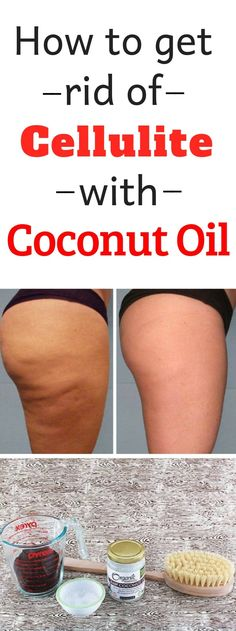 Cellulite is actually fat deposits just beneath the skin. It appears as lumps or dimples, usually near the buttocks and upper thighs, and is most common in women. Building muscle can make cellulite harder . Causes Of Cellulite, Cellulite Wrap, Cellulite Scrub, Cellulite Exercises, Cellulite Remedies, Reduce Cellulite, Anti Cellulite, Coconut Oil Cellulite, Homemade Coconut Oil