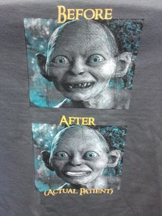Shirt Promoting a Dental Office #TheHobbit #LordOfTheRings