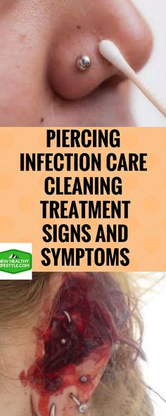 PIERCING INFECTION CARE, CLEANING, TREATMENT, SIGNS AND SYMPTOMS    t.umblr.com/redirect